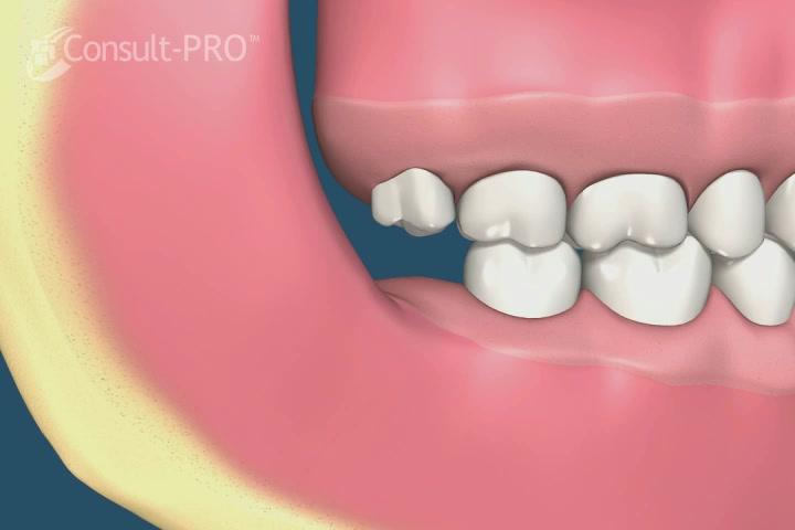 Wisdom Teeth Removal Richmond Va Wisdom Tooth Extraction Tuckahoe Midlothian Mechanicsville Sandston